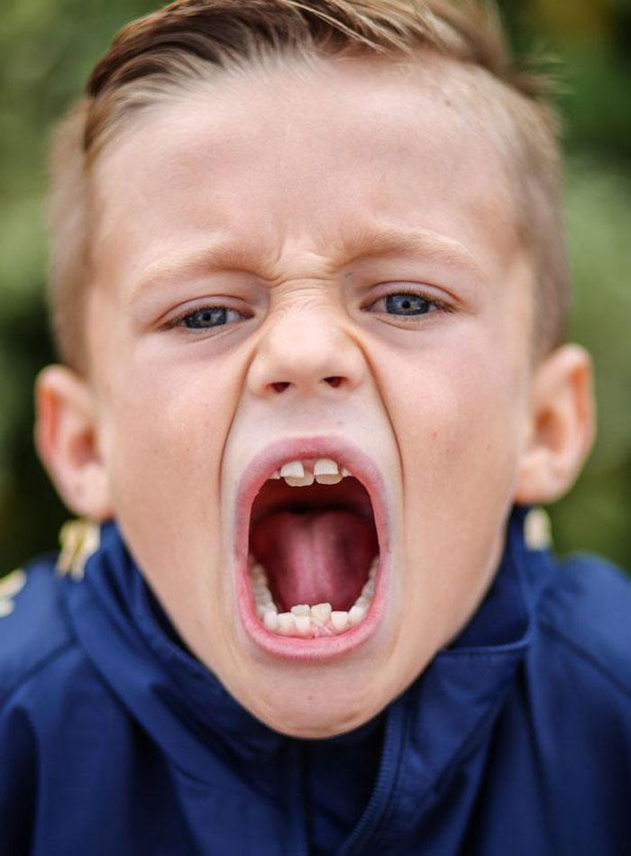 У ребенка не помещаются зубы