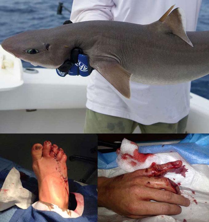Фото нападения акулы в Черном море