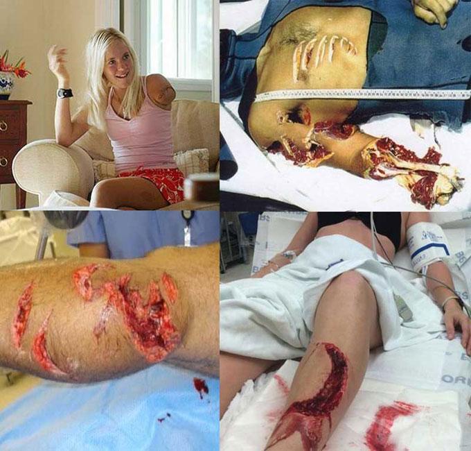Фотография последствий нападения акул на человека